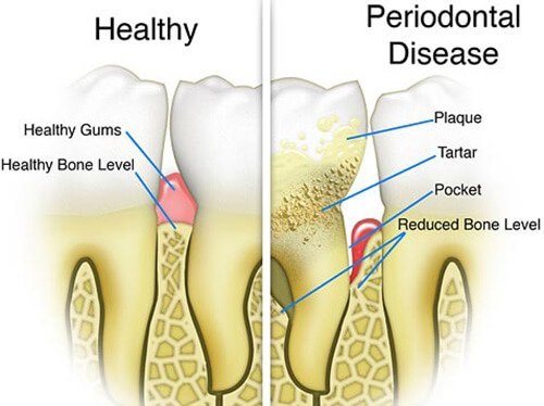 Periodontal Maintenance North Nollywood