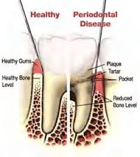 Teeth Deep Cleaning North Hollywood