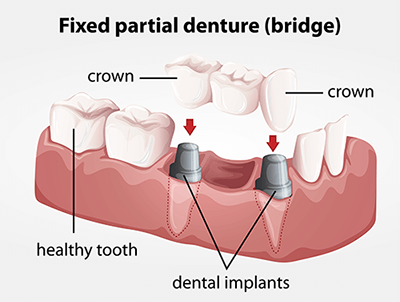 Dental Bridges in North Hollywood