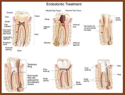 North Hollywood Endodontic Treatment