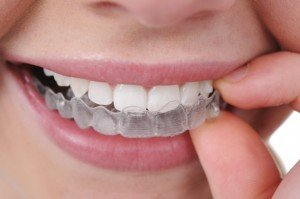 Invisalign Ortho North Hollywood