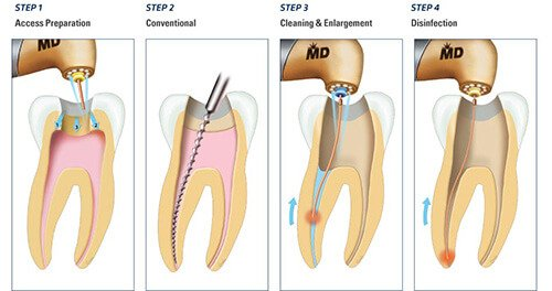 Root Canal North Hollywood