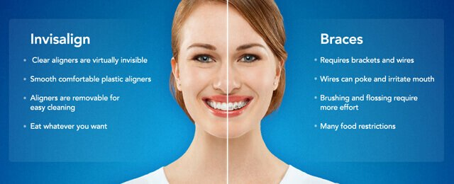 Invisalign North Hollywood